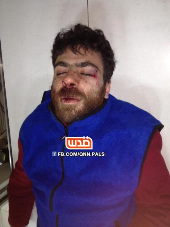 hafeth_omar_injured_quds_net1
