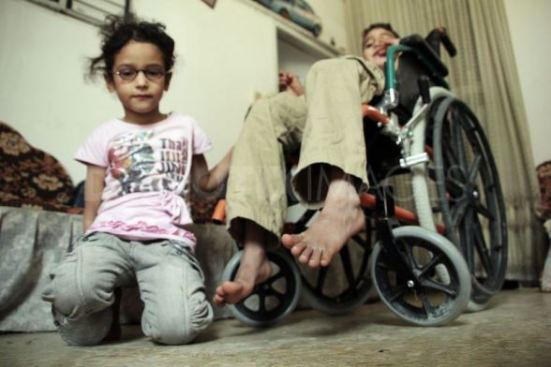 mahmoud-a-9-yr-old-a-palestinian-child-from-gaza-city-wounded-during-israeli-shelling-on-his-house-faces-many-difficulties-due-to-his-injury-he-is-unable-to-walk-or-to-talk-photo-by1