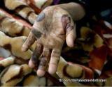 Palestinians Operation Cast Lead WoundedPhotos