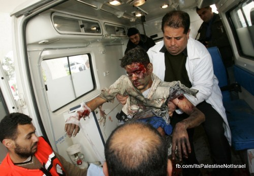 Operation_cast_lead_Victims_Wounded_After_Attack_29