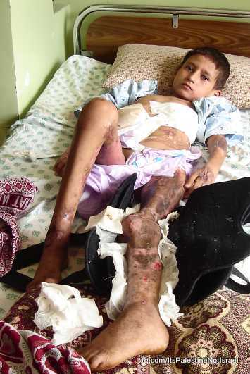 Operation_cast_lead_Victims_Wounded_After_Attack_60