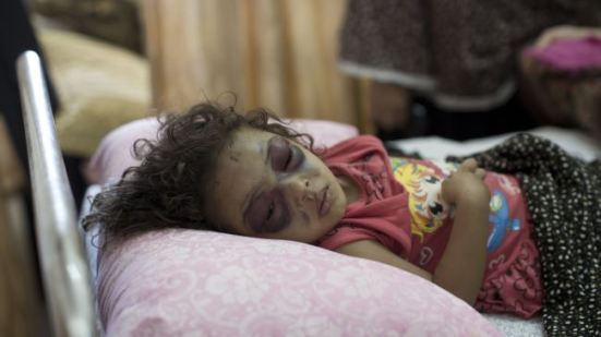 Two-year-old Palestinian girl Naama Abu al-Foul sleeps after undergoing treatment at Gaza City's Al-Shifa hospital following Israeli bombing next to her family's home in the battered city, July 23, 2014.