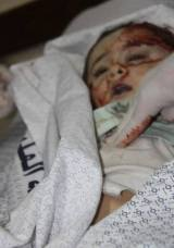 Gaza genocide: Urgent plea from Dr Mads Gilbert (Shifahospital)