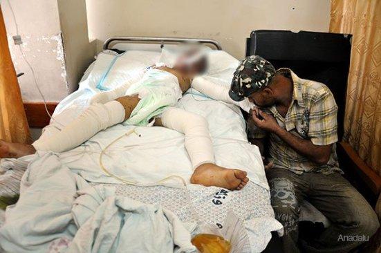Lauy-Siyam-wounded-recovering-at-al-shifa-hospital-following-israeli-drone-attack