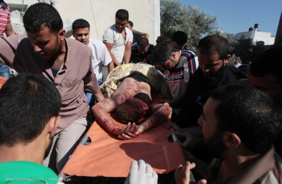 Gaza-under-attack-09-July-2014-photos-003