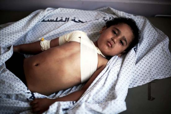 palestinian-child-injured-by-bomb-2014-1